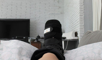 Bunion Surgery Recovery - Directions Not Included